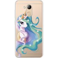 Силиконовый чехол BoxFace Huawei Honor 6C Pro Unicorn Queen (934984-rs3)