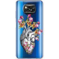 Силиконовый чехол BoxFace Xiaomi Poco X3 Heart (941290-rs11)