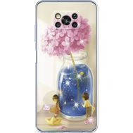 Силиконовый чехол BoxFace Xiaomi Poco X3 Little Boy and Girl (941290-rs18)